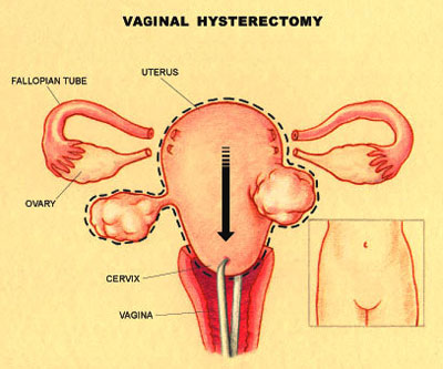 Vaginal pain with pa